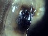 Nesodillo_sp._PhipunTiger_Mouth1.png