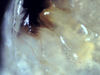 Nesodillo_sp._PhipunTiger_Mouth2.png